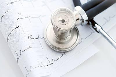 یک گوشی پزشکی بر روی کاغذ نوار قلب
