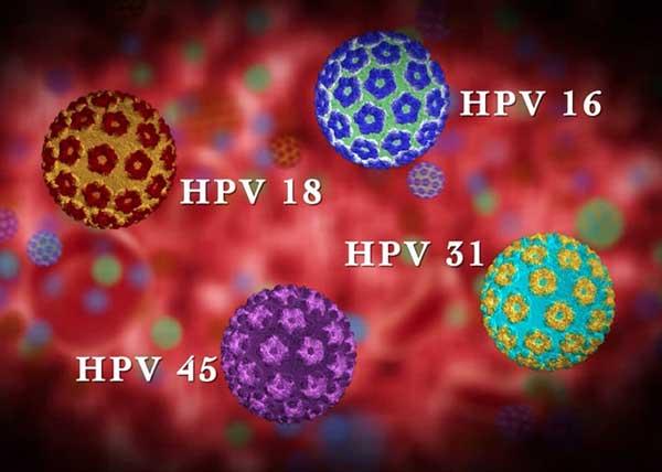 چهار نوع از ویروسهای اچ پی وی که کروی شکل و در رنگهای آبی و بنفش و سبز و قرمز هستند
